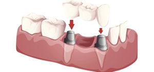 Dental-Implant_diagram2