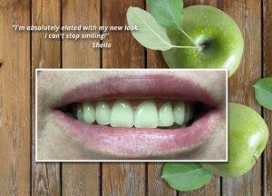 Natural Dentures New Smile After