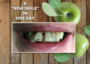Natural Dentures New Smile Before